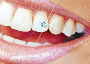 کاشتن نگین روی دندان باعث پوسیدگی و از بین رفتن مینای دندان می شود