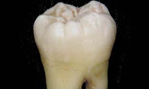 با طب باستانی هندوها دندانهایتان را سفید کنید