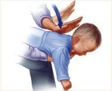 خفه شدن کودک دوساله رفسنجانی بر اثر خوردن دانه انار