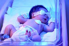 پژوهشگران رفسنجانی روش راحتی برای کاهش زردی نوزادان ارائه کردند